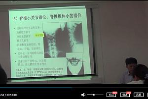 杜宁中医正骨手法推拿治疗膝关节炎的髌骨手法教学视频百度网盘下载学习
